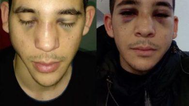 Photo of Studente del Paraguay aggredito, ecco chi sono gli autori del pestaggio