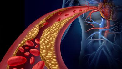 Photo of Dislipidemia, ecco come prevenire infarti e ictus: i consiglio dell'esperto