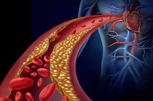 Dislipidemia, ecco come prevenire infarti e ictus: i consiglio dell'esperto