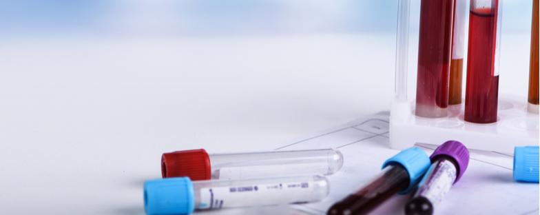 Test sierologici, scelto un campione di 150mila persone: si inizia domani